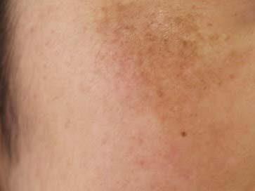 肝斑 トラネキサム酸