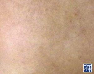 敏感肌 乾燥 化粧品