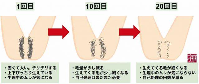 Iライン ケノンVIO粘膜