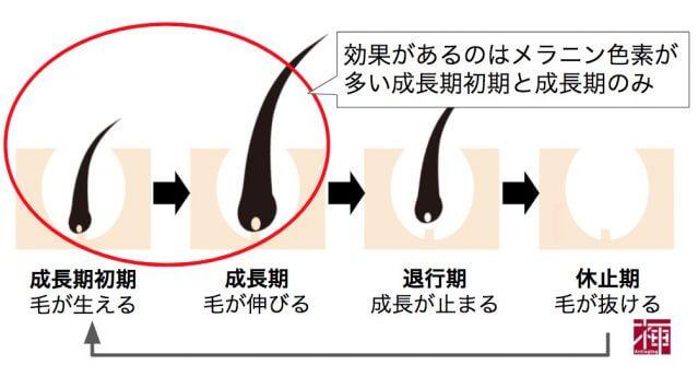 毛周期 ケノン永久脱毛